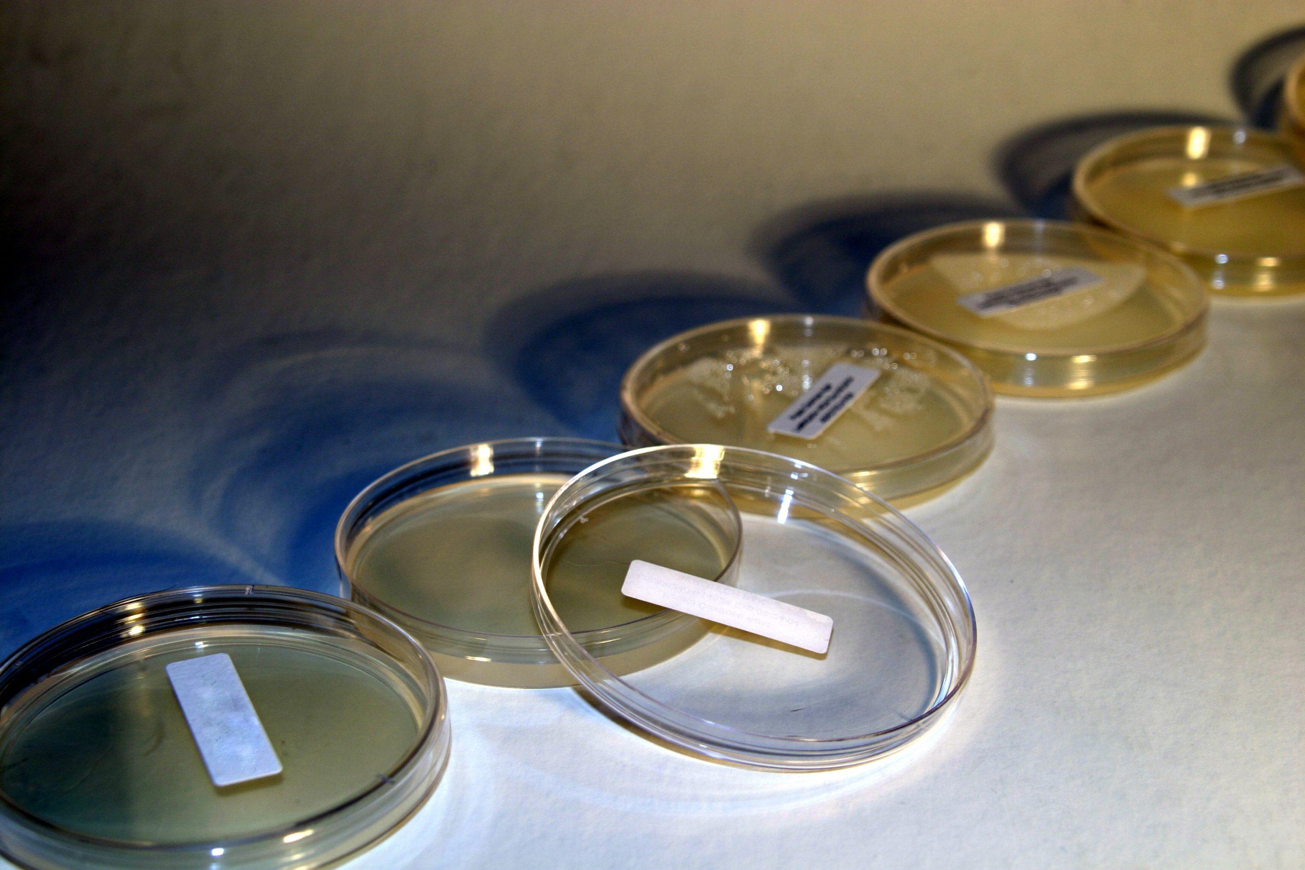 Laboratory Bacteria Testing